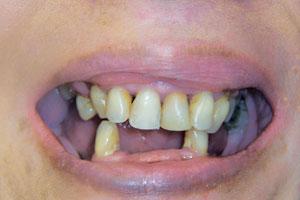 Cs-missingteeth-before