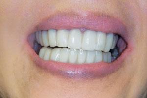 Cs-missingteeth-after